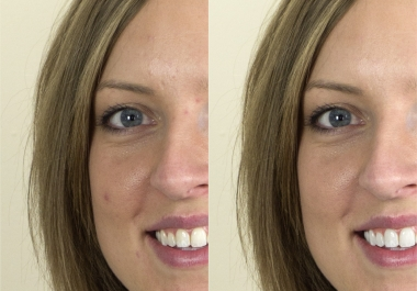 remove blemishes from a photo