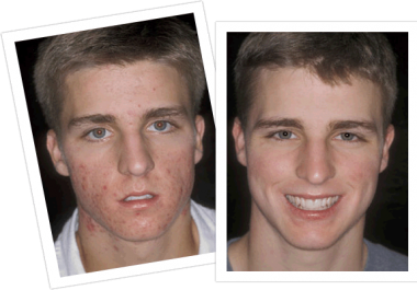 show you effectively how to cure your acne in 4days