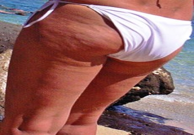 show you how to get rid of cellulite in two hours