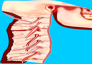 redesign complex medical Illustration to vector