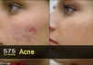 give you 575 PLR Articles on Acne