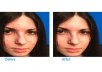 clean your skin pimples and unnecessary marks from your photos, up to 2 photos
