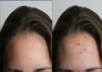 remove pimples of your photo